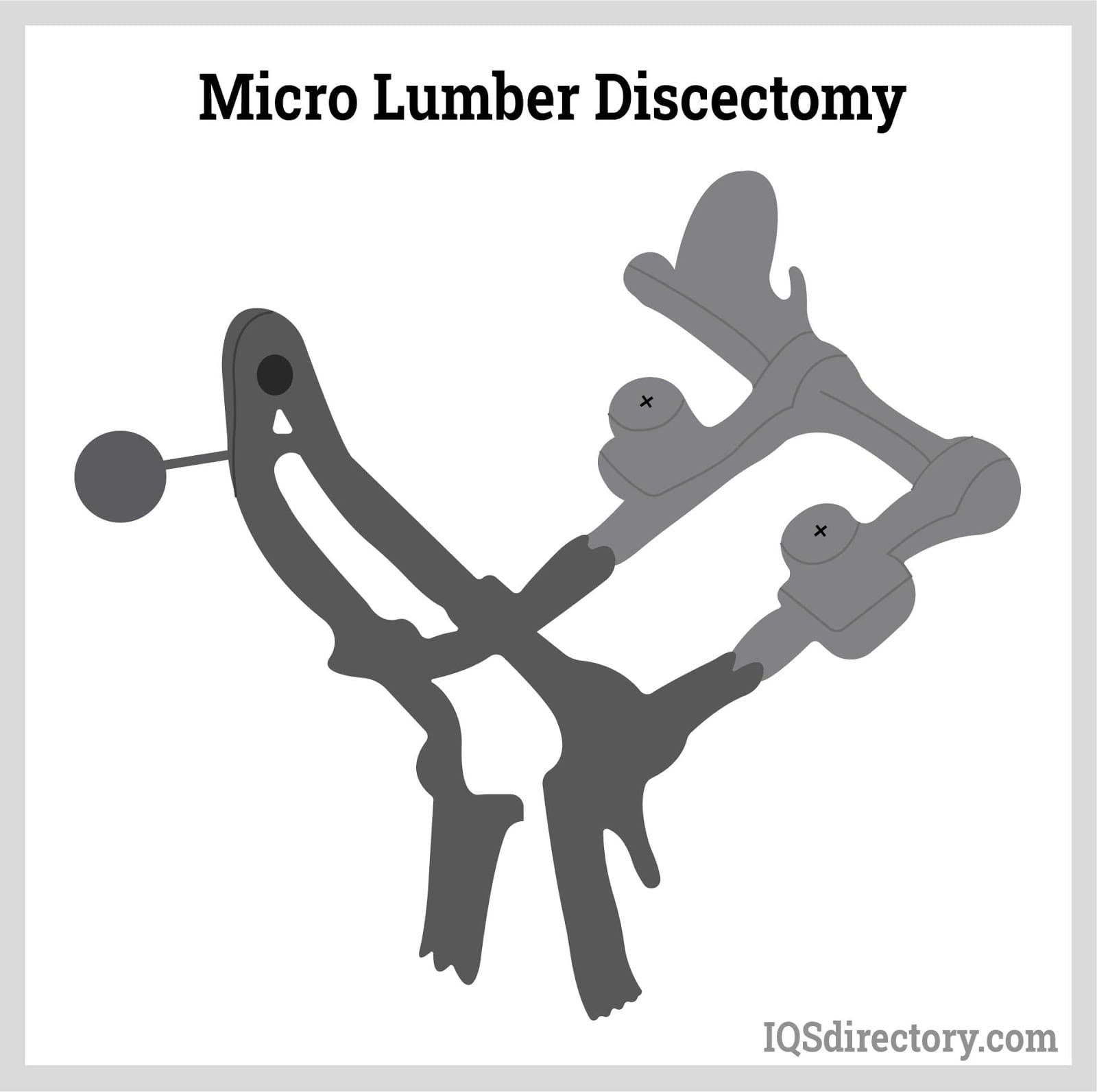 Micro Lumbar Discectomy