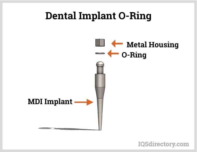Dental Implant O-Ring